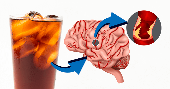 Bad News for Your Brain: Artificially Sweetened Drinks Increase Risk of Stroke and Dementia   Bewellhub